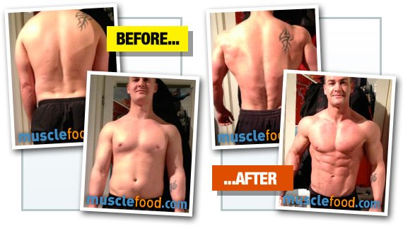 Weight loss surgery is it safe image 2
